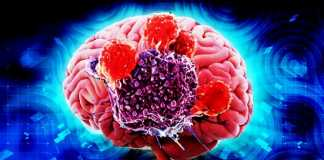 symptoms of Brain Cancer