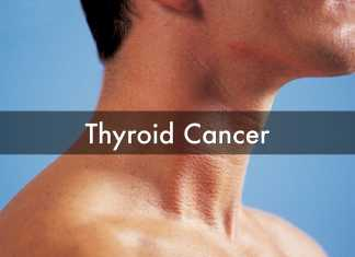 Thyroid Cancer signs