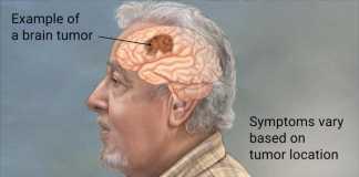 symptoms of brain tumors