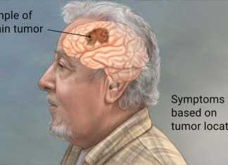 symptoms of brain tumors